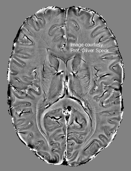 Horizontal brain slice imaged at 7T.