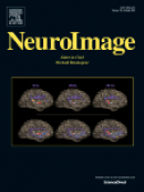 Article by researchers, including DRCMR people, published in NeuroImage