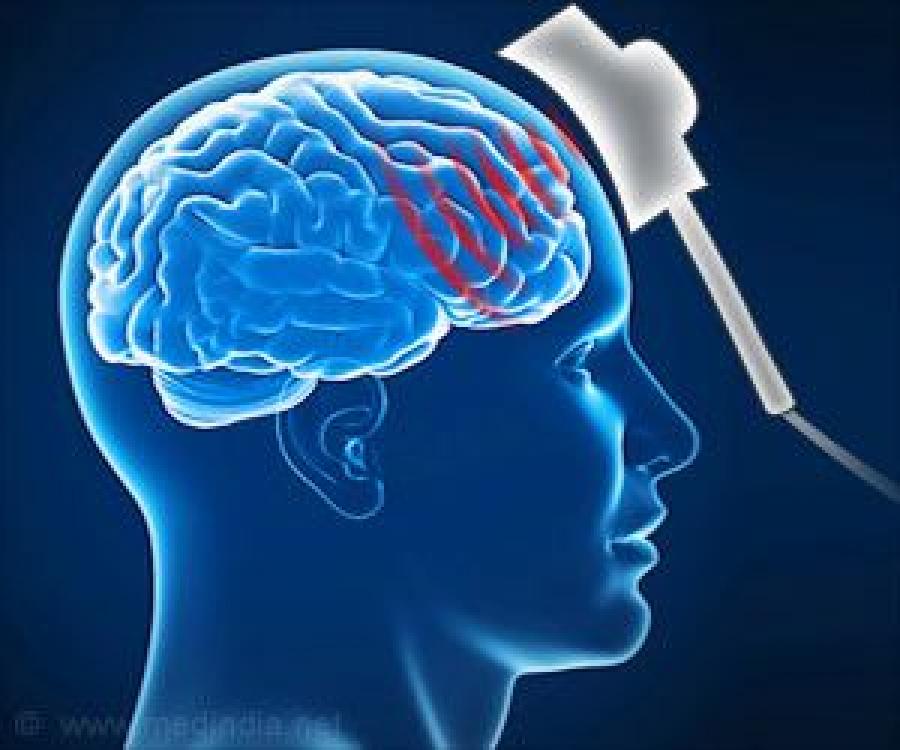 """Attēlu rezultāti vaicājumam """"transcranial magnetic stimulation"""""""